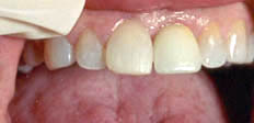 Tooth implant - after